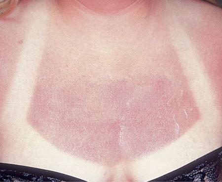 Аллергия на солнце: симптомы