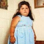 Проблему ожирения у детей следует устранять всей семьей