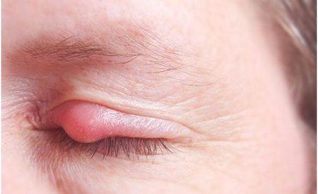Опухло верхнее веко ― причины и способы лечения