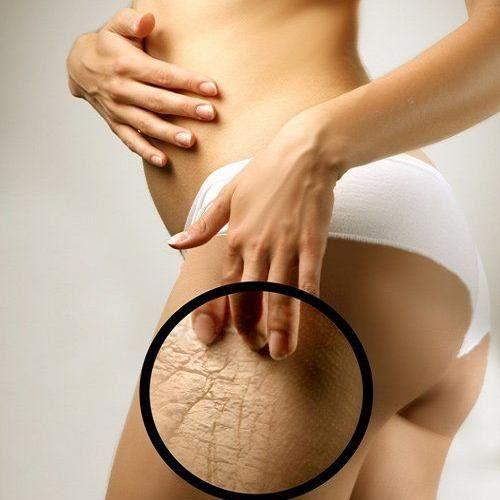 Средства от растяжек при беременности