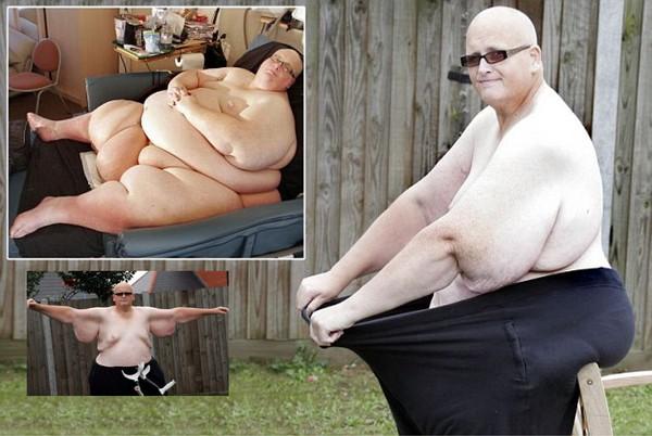 Фото как похудел самый толстый человек в мире
