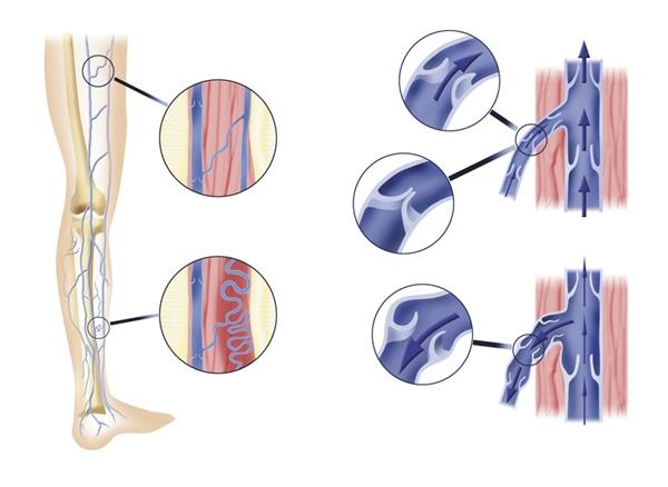 Варикоз - методы лечения, причины, симптомы и профилактика варикозного расширения вен