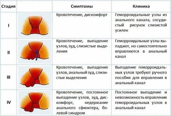 Рецепт.автозагар в домашних условиях
