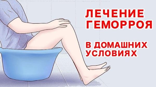 Как вылечить геморрой в домашних условиях
