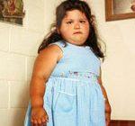 Причины ожирения у детей следует искать в семье