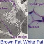 Американские ученые: «Бурый жир помогает худеть»
