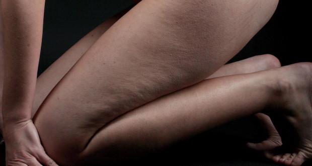 Почему появляется целлюлит у худых девушек и как от него избавиться