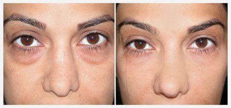 Черные круги под глазами: причины, лечение, советы врачей