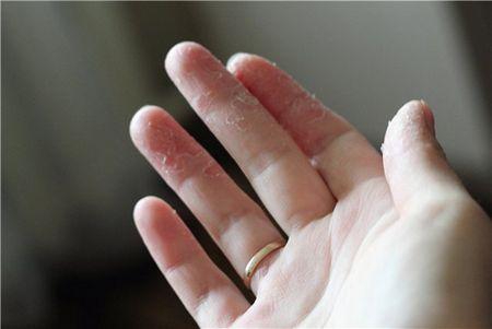 Что делать, когда шелушится кожа на руках