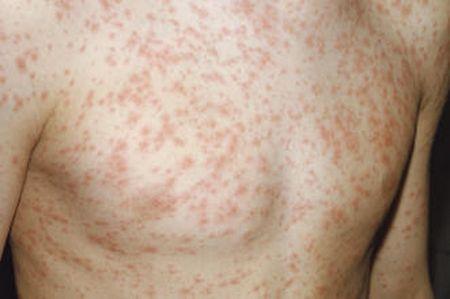 Ярко выраженные красные пятна на теле – причины и лечение