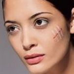 Эффективный крем от рубцов и шрамов