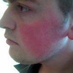 Стоит ли лечить покраснение на щеках у взрослого человека