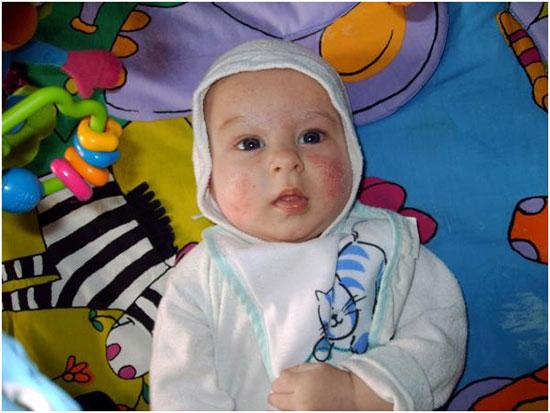 Аллергия на белок коровьего молока у ребенка в раннем возрасте.