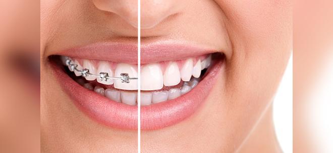 Брекеты и отбеливание зубов