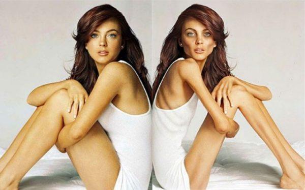 Анорексия: 10 фото девушек до и после