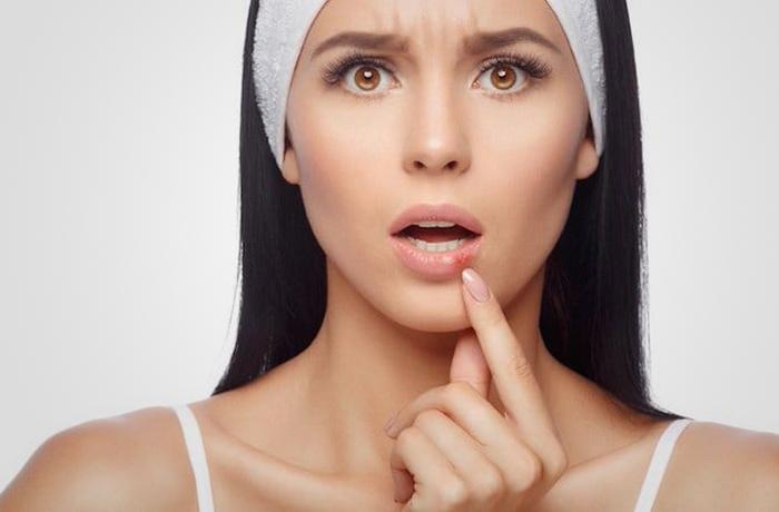 Почему каждой женщине следует знать про вирус папилломы человека (ВПЧ)?